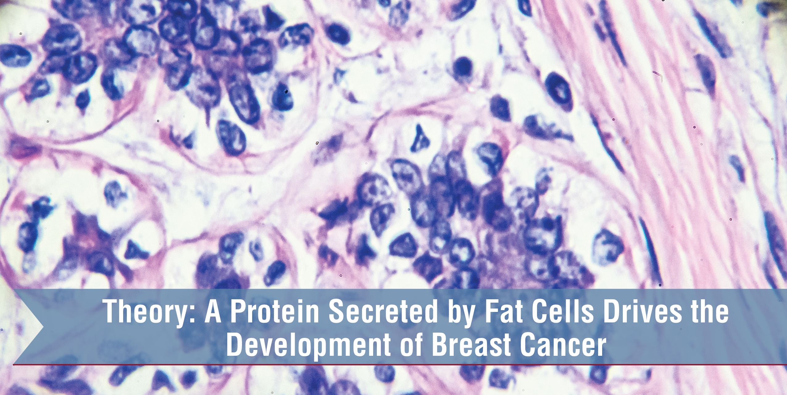 Theory: A Protein Secreted By Fat Cells Drives The Development Of Breast Cancer
